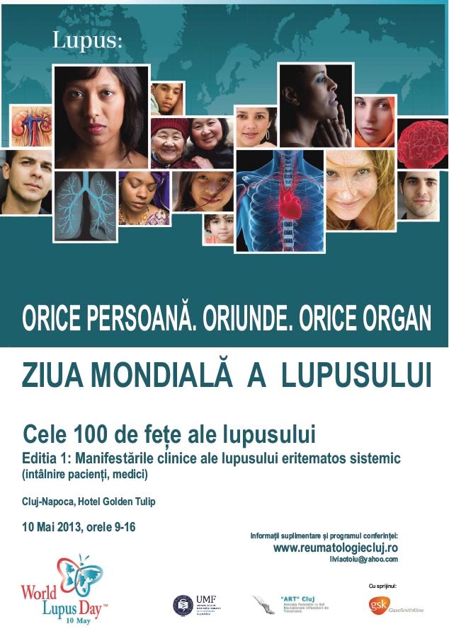 """Conferinţa Naţională de Lupus """"Cele 100 de feţe ale lupusului"""""""