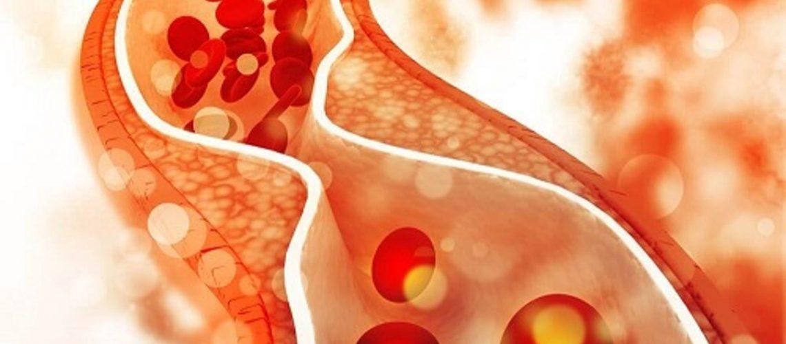 dieta-sanatoasa-pentru-scaderea-colesterolului-rau